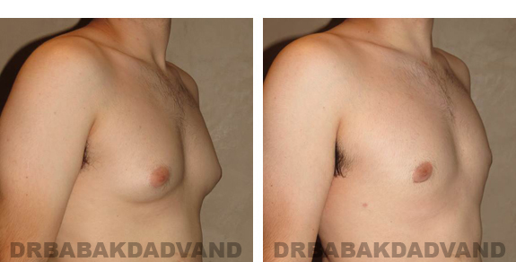 Gynecomastia. Before and After Treatment Photos - male, right side oblique view (patient 24)