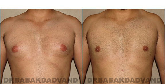 Gynecomastia. Before and After Treatment Photos - male, front view (patient 27)