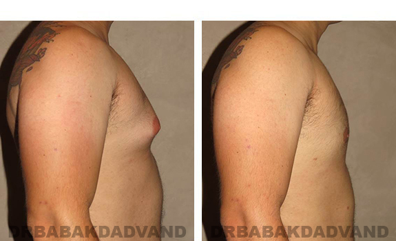 Gynecomastia. Before and After Treatment Photos - male, right side view (patient 27)