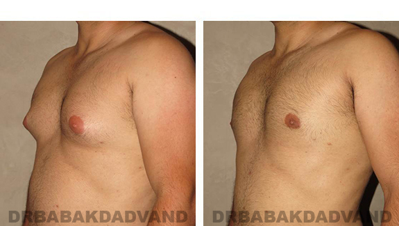 Gynecomastia. Before and After Treatment Photos - male, left side oblique view (patient 27)