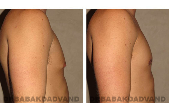 Gynecomastia. Before and After Treatment Photos - male, right side view (patient 28)