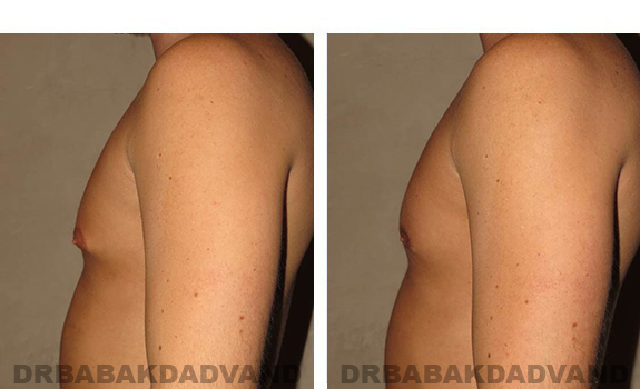 Gynecomastia. Before and After Treatment Photos - male, left side view (patient 28)