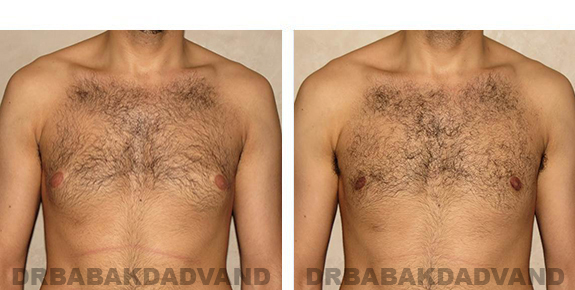 Gynecomastia. Before and After Treatment Photos - male, front view (patient 30)