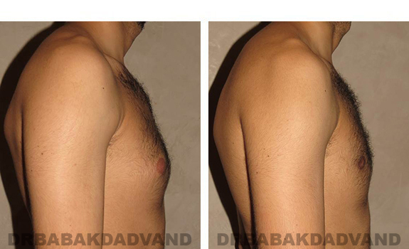 Gynecomastia. Before and After Treatment Photos - male, right side view (patient 30)