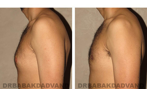 Gynecomastia. Before and After Treatment Photos - male, left side view (patient 30)