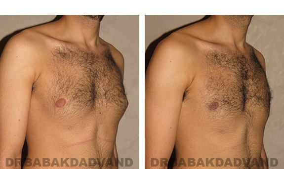 Gynecomastia. Before and After Treatment Photos - male, right side oblique view (patient 30)