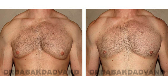 Gynecomastia. Before and After Treatment Photos - male, front view (patient 31)