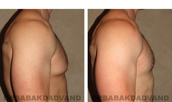 Gynecomastia. Before and After Treatment Photos - male, right side view (patient 31)
