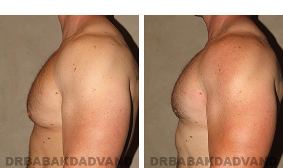 Gynecomastia. Before and After Treatment Photos - male, left side view (patient 31)