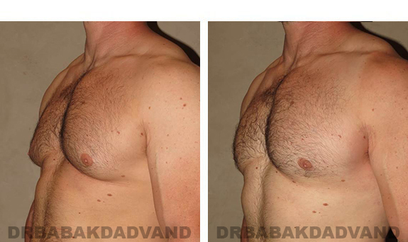 Gynecomastia. Before and After Treatment Photos - male, left side oblique view (patient 31)