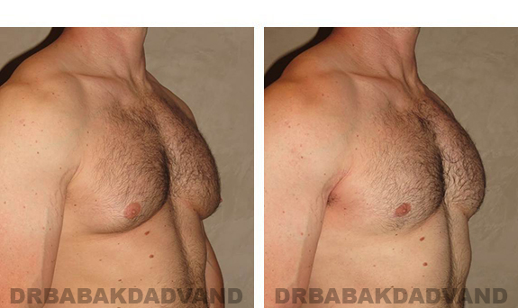 Gynecomastia. Before and After Treatment Photos - male, right side oblique view (patient 31)