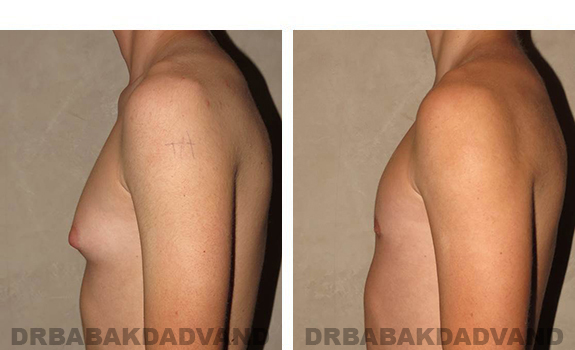 Gynecomastia. Before and After Treatment Photos - male, left side view (patient 32)
