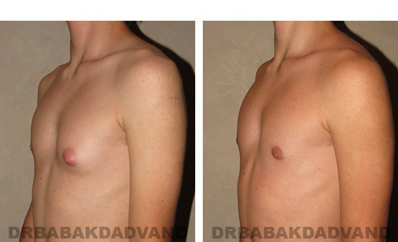 Gynecomastia. Before and After Treatment Photos - male, left side oblique view (patient 32)