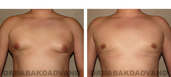 Gynecomastia. Before and After Treatment Photos - male, front view (patient 33)