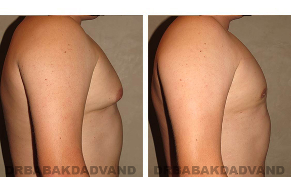 Gynecomastia. Before and After Treatment Photos - male, right side view (patient 33)