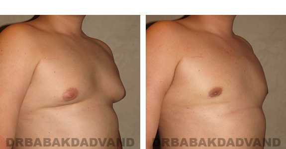 Gynecomastia. Before and After Treatment Photos - male, right side oblique view (patient 33)
