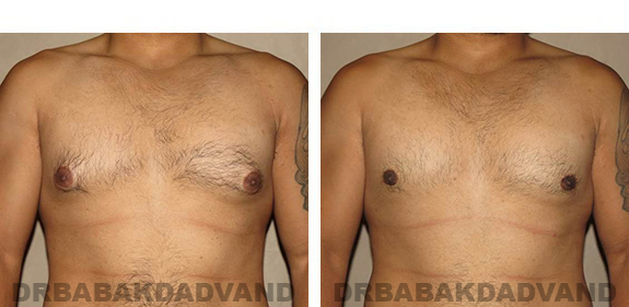 Gynecomastia. Before and After Treatment Photos - male, front view (patient 34)