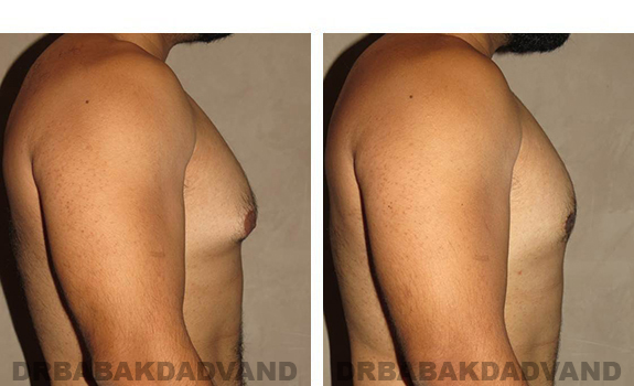 Gynecomastia. Before and After Treatment Photos - male, right side view (patient 34)