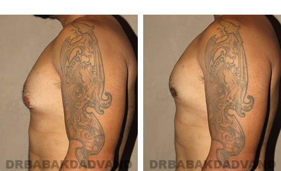 Gynecomastia. Before and After Treatment Photos - male, left side view (patient 34)