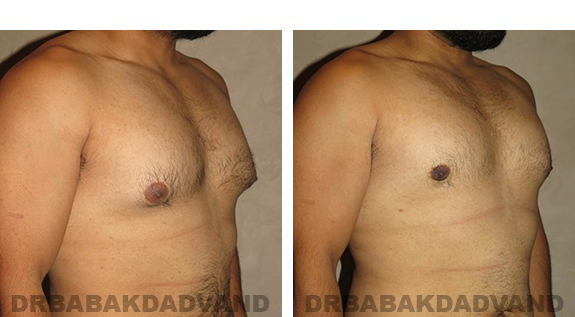 Gynecomastia. Before and After Treatment Photos - male, right side oblique view (patient 34)