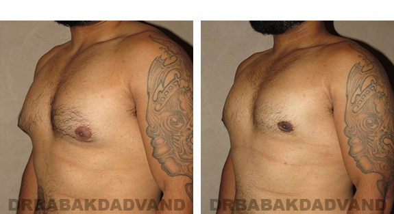 Gynecomastia. Before and After Treatment Photos - male, left side oblique view (patient 34)