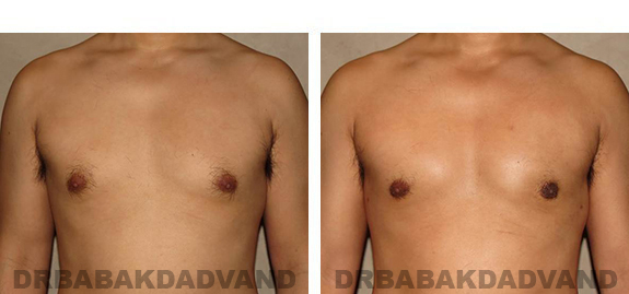 Gynecomastia. Before and After Treatment Photos - male, front view (patient 36)