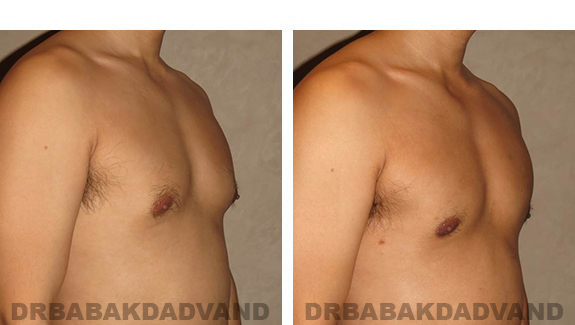 Gynecomastia. Before and After Treatment Photos - male, right side oblique view (patient 36)