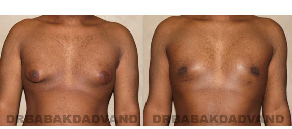 Gynecomastia. Before and After Treatment Photos - male, front view (patient 2)