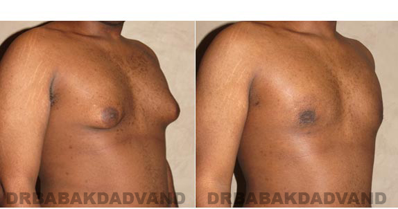 Gynecomastia. Before and After Treatment Photos - male, right side oblique view (patient 2)