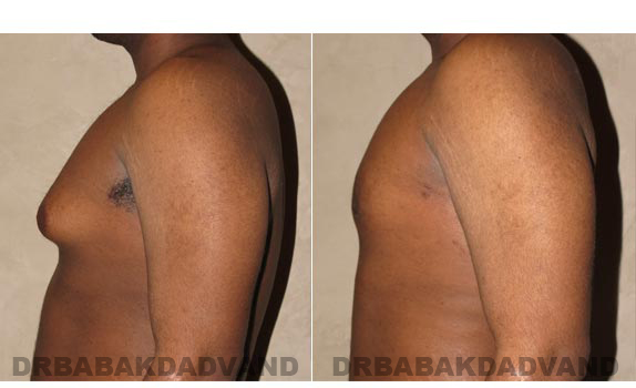 Gynecomastia. Before and After Treatment Photos - male, left side view (patient 2)