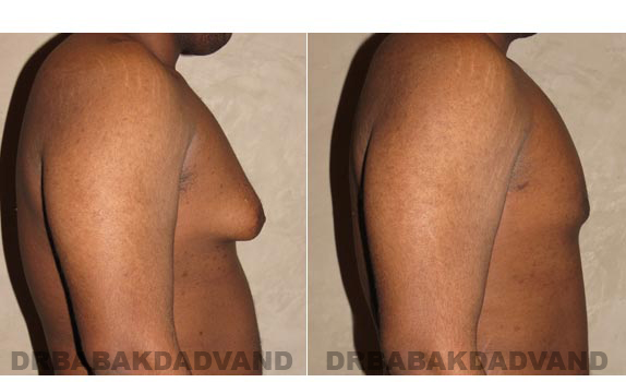 Gynecomastia. Before and After Treatment Photos - male, right side view (patient 2)