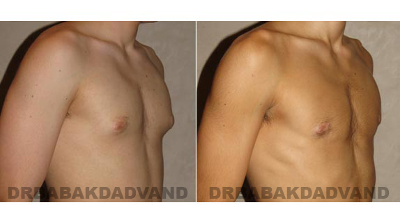 Gynecomastia. Before and After Treatment Photos - male - right side oblique view (patient - 9)