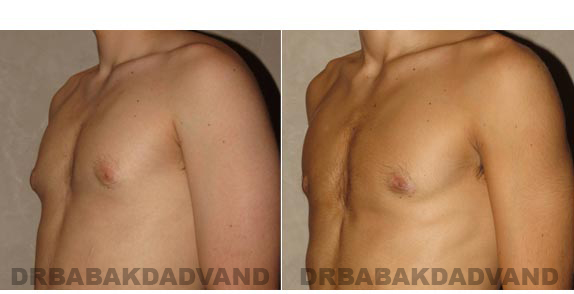 Gynecomastia. Before and After Treatment Photos - male - left side oblique view (patient 9)
