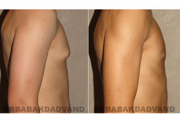Gynecomastia. Before and After Treatment Photos - male - right side view (patient - 9)
