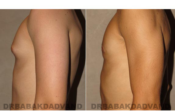 Gynecomastia. Before and After Treatment Photos - male - left side view (patient - 9)