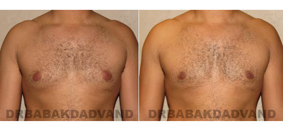 Gynecomastia. Before and After Treatment Photos - male, front view (patient 13)