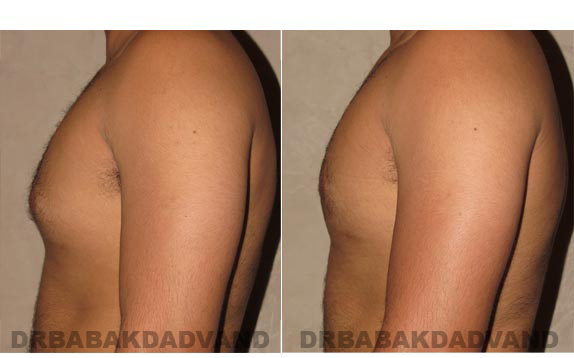 Gynecomastia. Before and After Treatment Photos - male, left side view (patient 13)