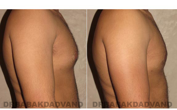 Gynecomastia. Before and After Treatment Photos - male, right side view (patient 13)