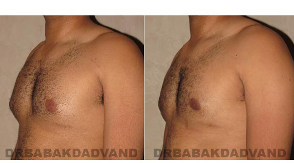 Gynecomastia. Before and After Treatment Photos - male, left side oblique view (patient 13)