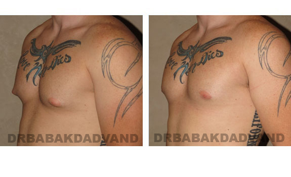 Gynecomastia. Before and After Treatment Photos - male, left side oblique view (patient 4)