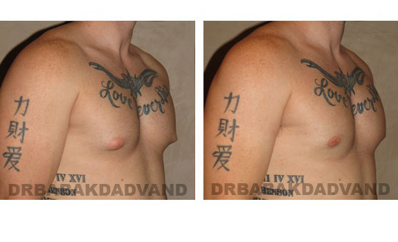 Gynecomastia. Before and After Treatment Photos - male, right side oblique view (patient 4)