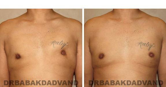 Before and After Treatment Photos - male, frontal view (patient 1)