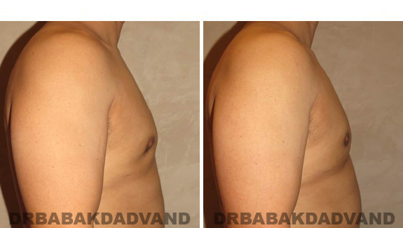 Before and After Treatment Photos - male, right side view (patient 1)