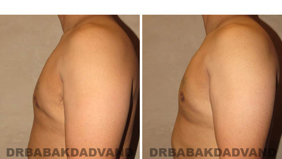 Before and After Treatment Photos - male, left side view (patient 1)