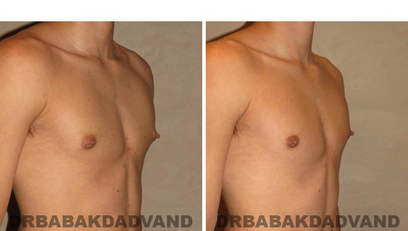 Before and After Treatment Photos - male, right side oblique view (patient 2)