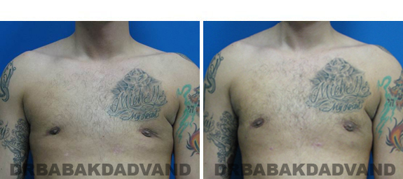 Before and After Treatment Photos - male, frontal view (patient 3)