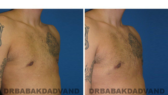 Before and After Treatment Photos - male, right side oblique view (patient 3)
