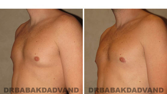 Before and After Treatment Photos - male, left side oblique view (patient 4)