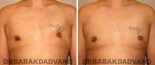REVISION GYNECOMASTIA. Before and After Photos - Patient 1, 34 year old male