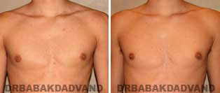REVISION GYNECOMASTIA. Before and After Photos - Patient 2, 17 year old male